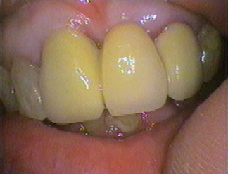 Upper front bridge - two crowns holding a false tooth (pontic) replacing the lost upper left front tooth