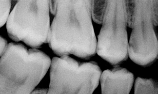 Right bitewing x-ray - decay upper tooth first in the row with large dark shadow