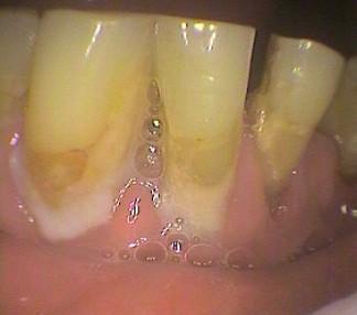 Large amount of plaque near gum