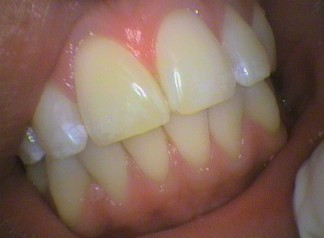 The gums, teeth and lips