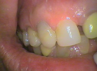 Front tooth adhesive filling with two corners build up: 525, 578 x 2