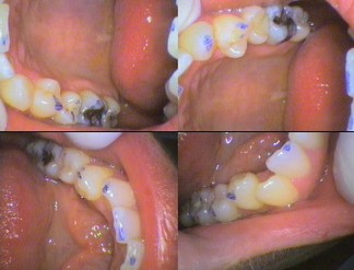 Check the bite with blue ink marks before adjusting the teeth