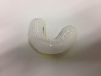 Mouthguard on model with opposing teeth indentations and name in within it
