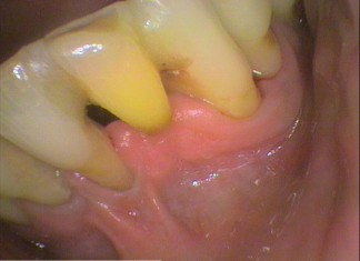 Lower front teeth Splinted with tooth coloured filling