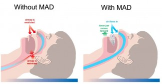 How mandibular advancement device (MAD) works