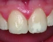 Trauma to the tooth bud showing up as a white discolouration on eruption