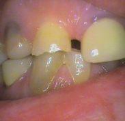 Worn teeth causing overclosure of bite