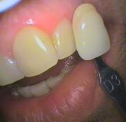 Teeth colour Shade D3 before bleaching