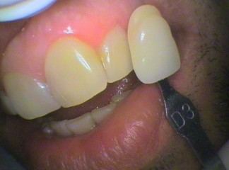 Teeth colour Shade D3 before bleaching