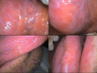 Under the tongue (top views) & side of tongue (lower views) white streaks – Referred to oral surgeon