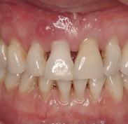Receding gums showing exposed roots and larger spaces between teeth. Also swelling in gum above front tooth.