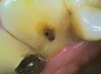 Exposed root canal with no tissue or symptoms