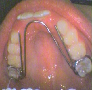 Fixed palatal arch appliance - Item 841