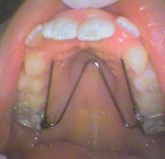 Fixed appliance adjusted by expanding the w shape to make room for new front teeth