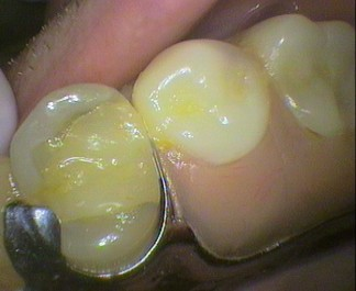 Metal denture resting on tooth