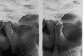 Xray of Jaw joint in closed position (RCP) and Jaw joint in maximum open position (T)