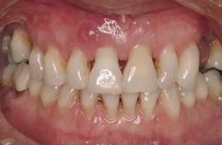 Receding gums showing exposed roots and larger spaces between teeth. Also swelling in gum above front tooth