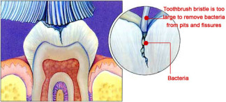 Diagram of a cross-sectional view of a fissure