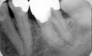 Pulpotomy in molar tooth with dressing in pulp chamber and filling placed