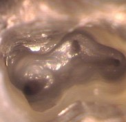 Root canal chamber showing black areas as root canal openings