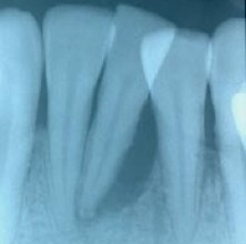 Excessive bone loss root tip in a class 3 mobility case - tooth was removed