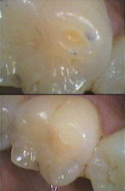 Filling of exposed worn cusp dentine - before and after