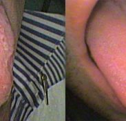 Left: Geographic tongue - loss of taste buds; Right: The normal tongue