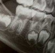 Teeth forming in bone with Enamel Whiter coating layer over rest of tooth in a Sac
